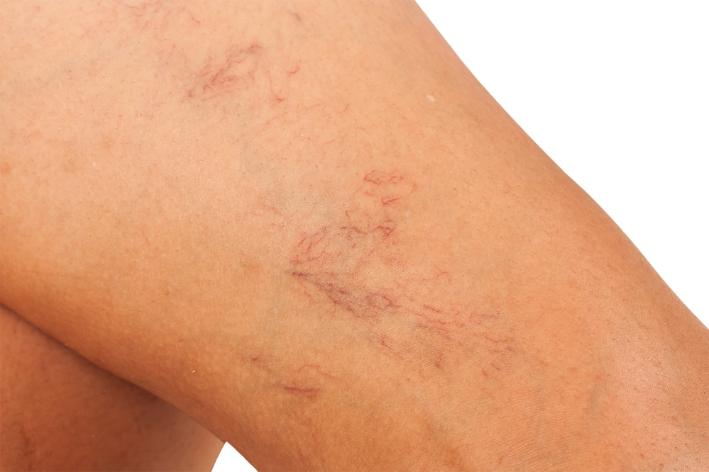 How to Get Rid of Spider Veins